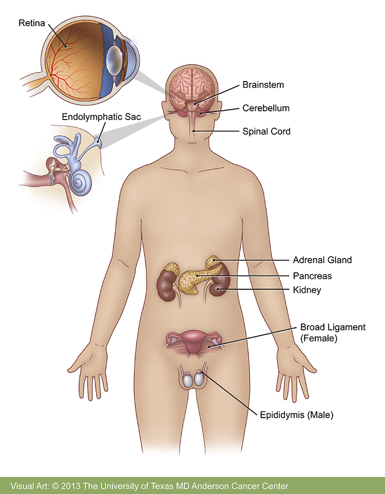 https://www.mdanderson.org/content/dam/mdanderson/images/diseases/Anatomical%20Illustrations/vonhippellindau_illustration.jpg