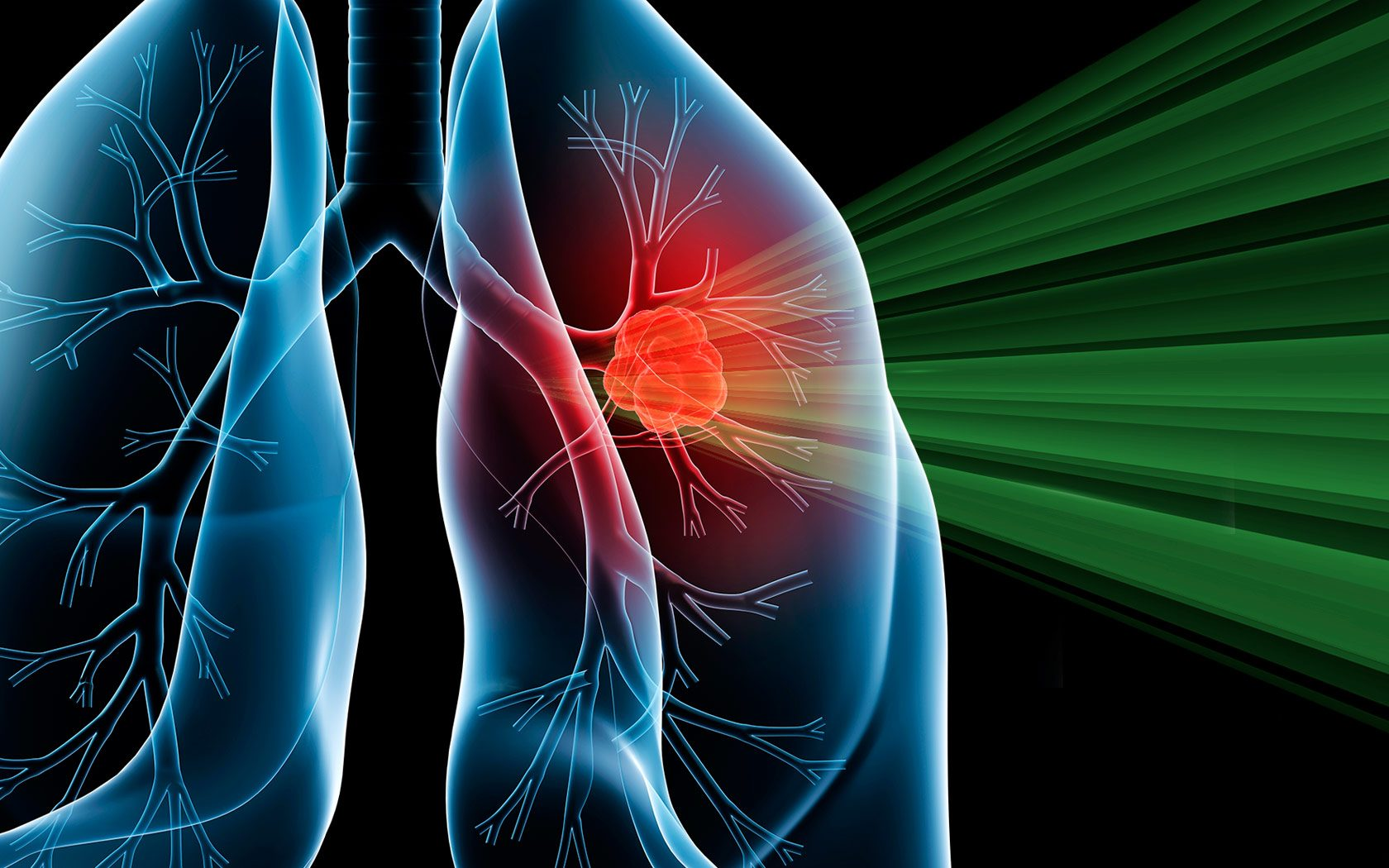 intensity modulated proton therapy shows promise for lung