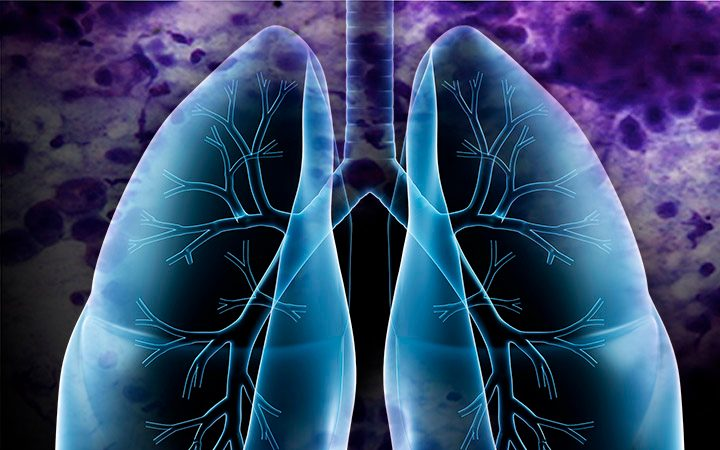 lung cancer next-generation cyclin dependent kinase 2/9