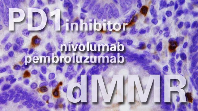 PD1 inhibitors help metastatic colorectal cancer patients