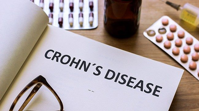 open notebook that says Crohn's disease, wtih pills and glasses