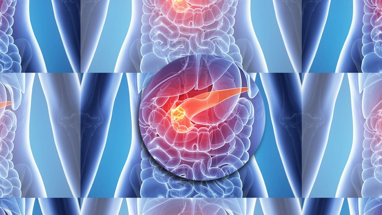 Graphic of pancreatic cancer