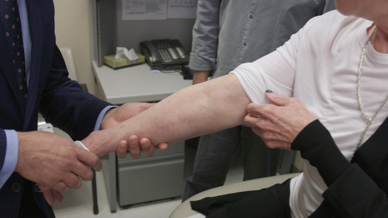 Doctor examining the arm of a patient with lymphedema