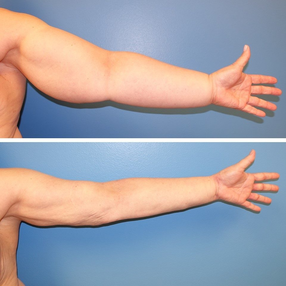 Results of a liposuction debulking procedure for lymphedema treatment.