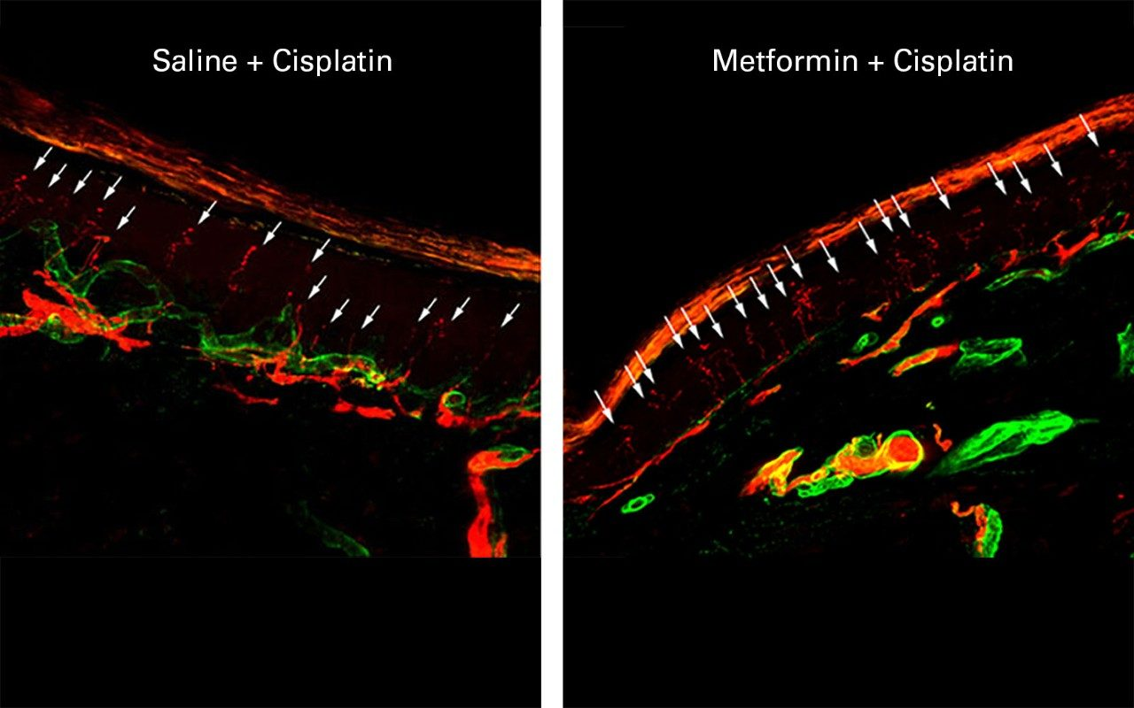 metformin protects against chemotherapy-induced peripheral neuropathy (CIPN)