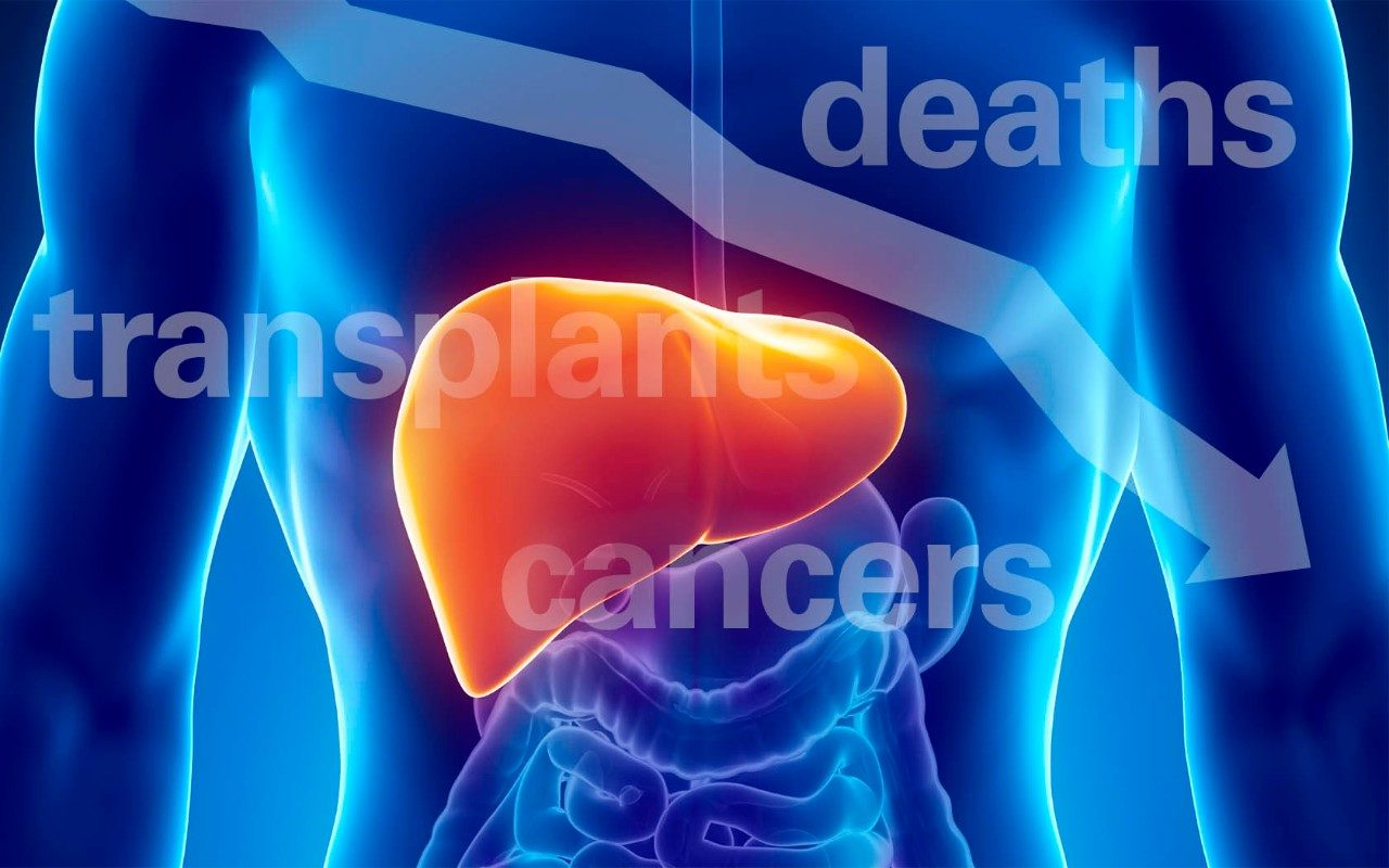 liver cancer hepatitis C