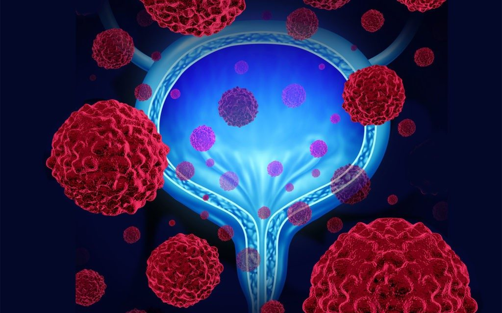 bladder cancer combination immunotherapy treatment clinical trial