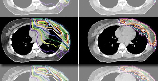 A breast cancer patient's post-mastectomy radiation treatment plans show a mean dose to the heart of 3.63 Gy with photon-based therapy (left) but only 0.05 Gy with proton therapy (right). Images courtesy of Rebecca Howell, M.D.