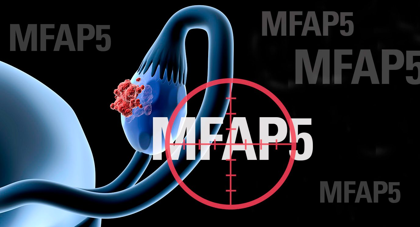 Researchers have found that targeting the MFAP5 protein in mouse models reduces the fibrosis involved in ovarian and pancreatic cancers.
