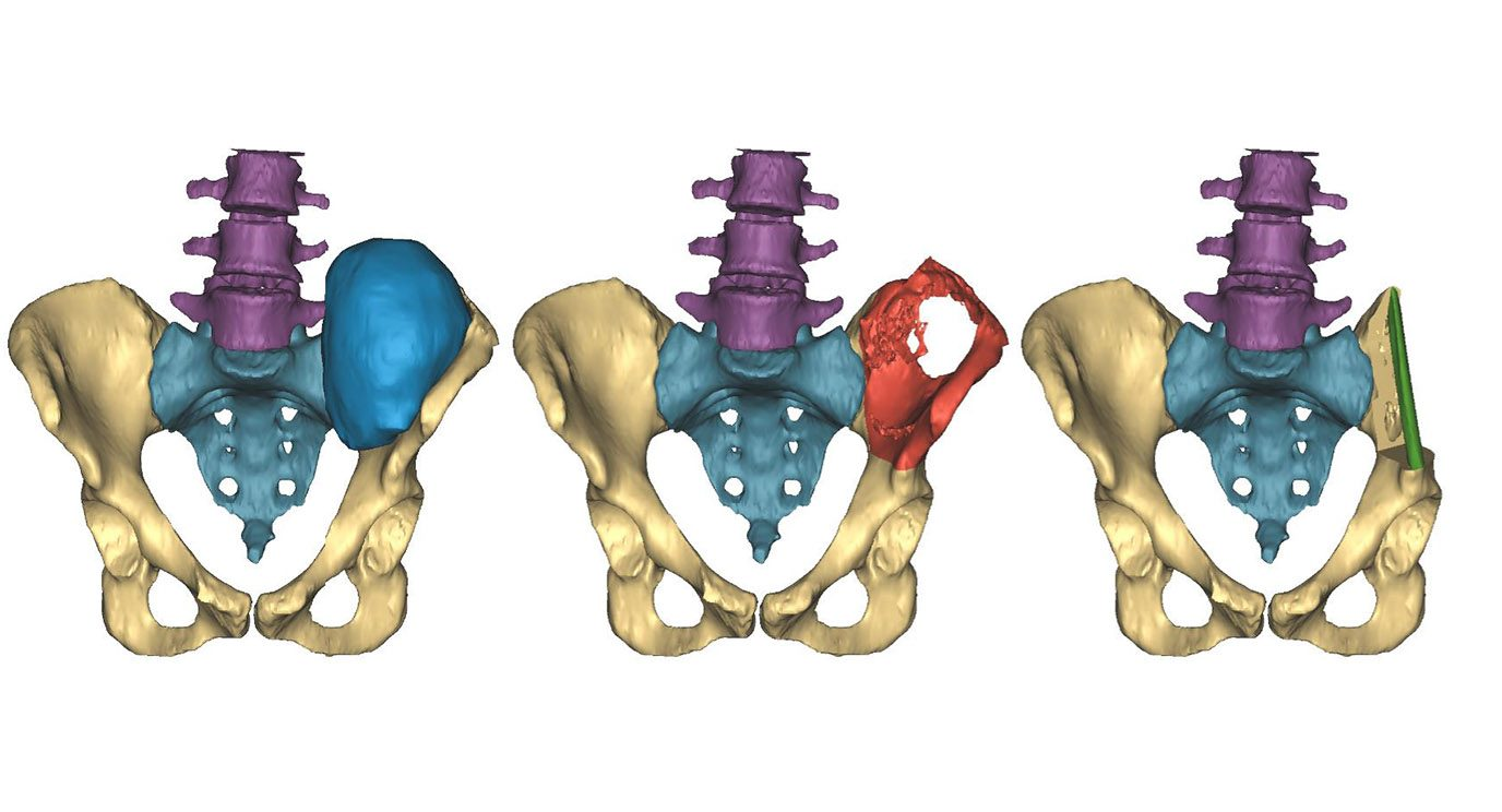 A 3D image shows the initial tumor in blue, left, the surgical plan in red, and then the reconstruction with a fibula implant in green at right. Image by Materialise.