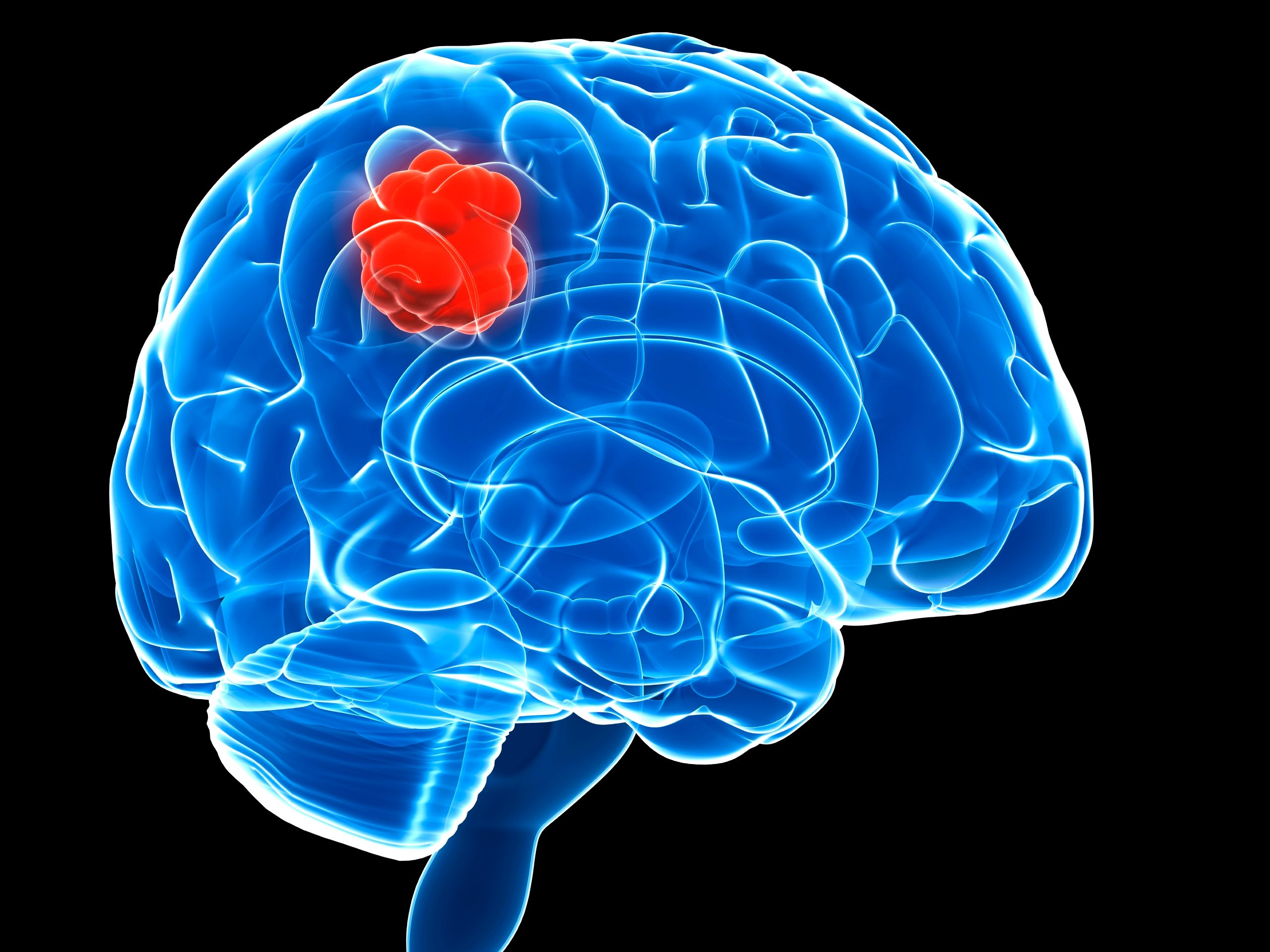 Cancerwise blog post: Coping with a brain tumor