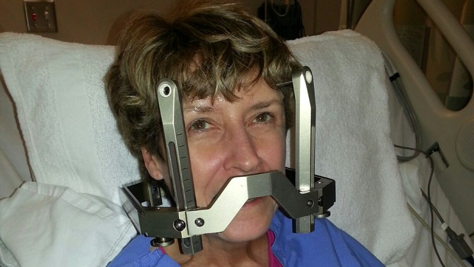 Cancerwise blog post: Lung cancer survivor recalls her Gamma Knife surgery