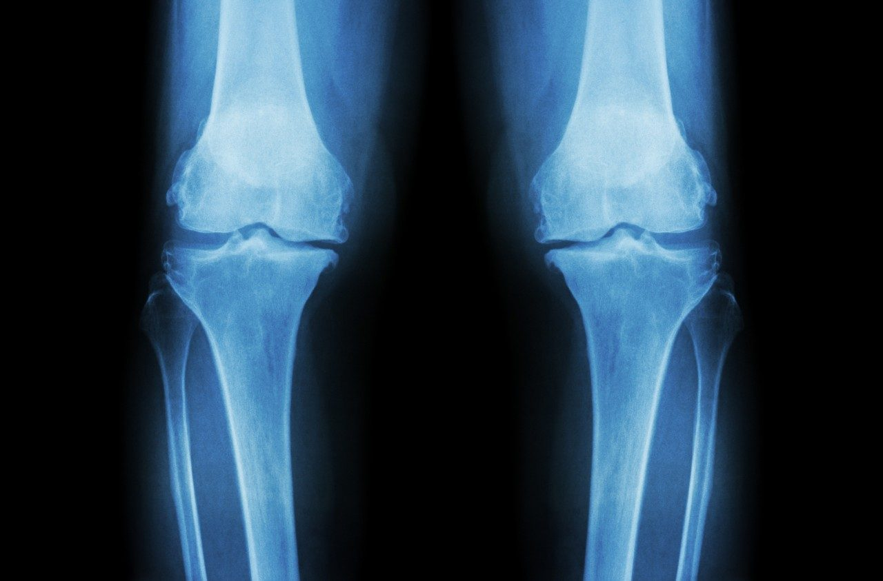 Cancerwise blog post: X-ray of knees, Ewing's sarcoma, osteosarcoma, allografts, soft tissue sarcoma