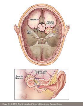 Acoustic Neuroma - Symptoms, Diagnosis & Treatment | MD