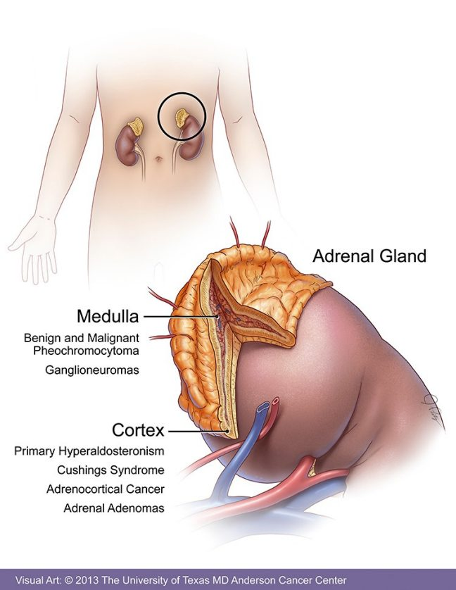 Adrenal Tumors Symptoms Diagnosis Treatment Md Anderson