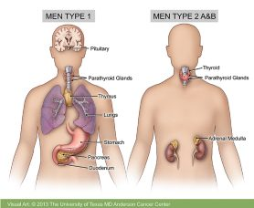 Multiple Endocrine Neoplasia Md Anderson Cancer Center