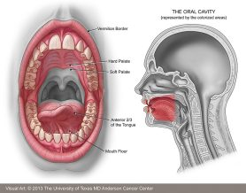 Oral Cancer - Facts, Diagnosis & Treatment | MD Anderson