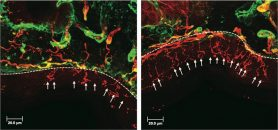 New developments in managing chemotherapy-induced neuropathy | MD