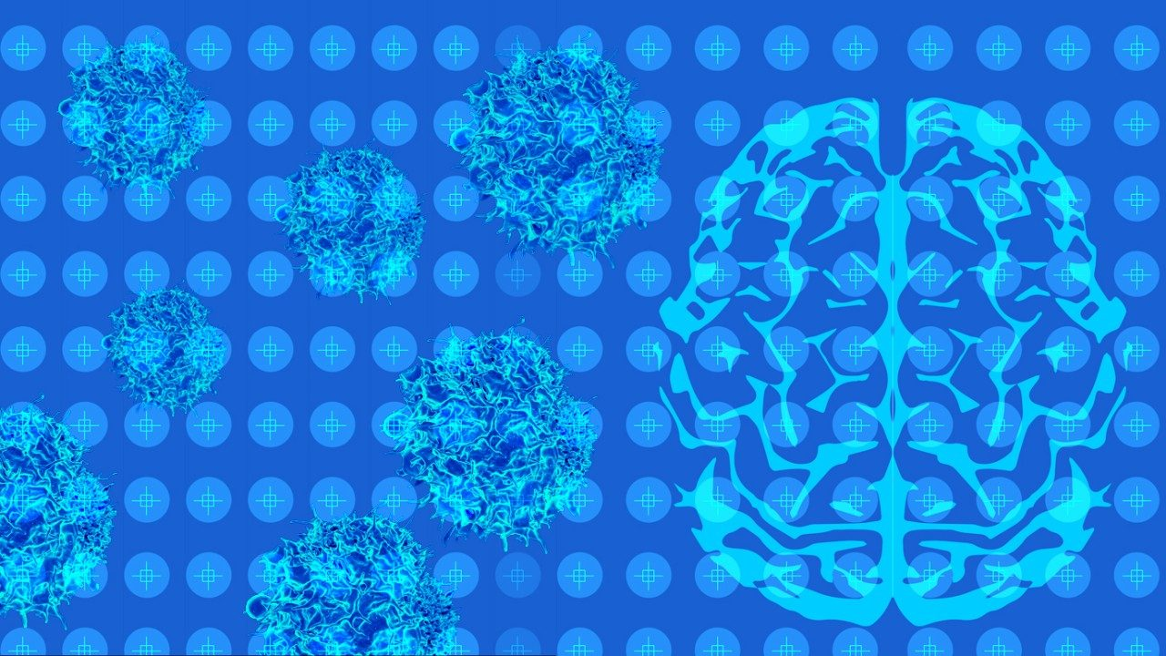 Immunotherapy before surgery for glioblastoma shows promise | MD