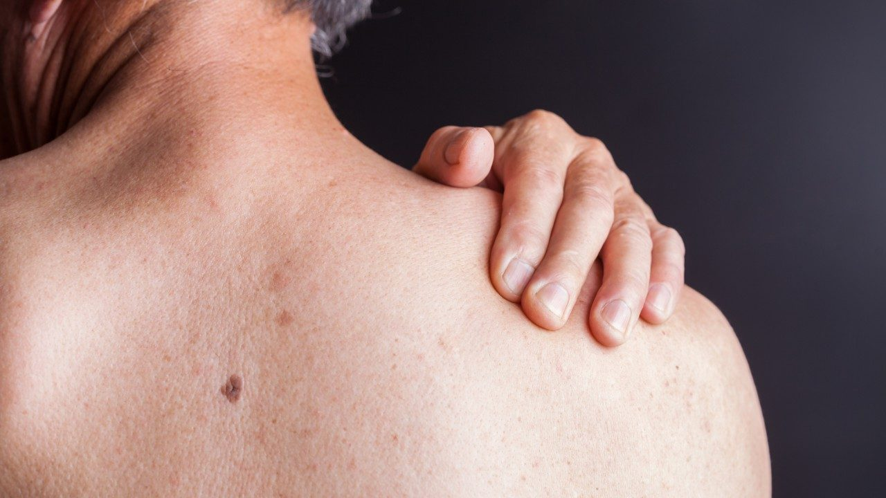 Cancer treatment side effect: skin changes | MD Anderson Cancer Center