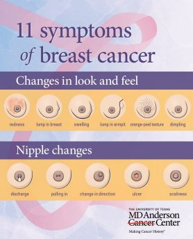 Breast cancer symptoms you shouldn't ignore | MD Anderson