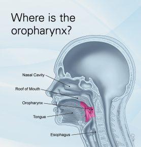 hpv virus symptoms in throat